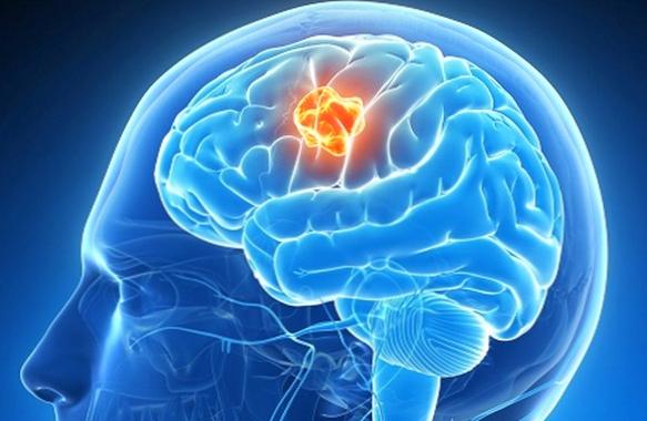Что нужно знать про рак мозга    Салон красоты